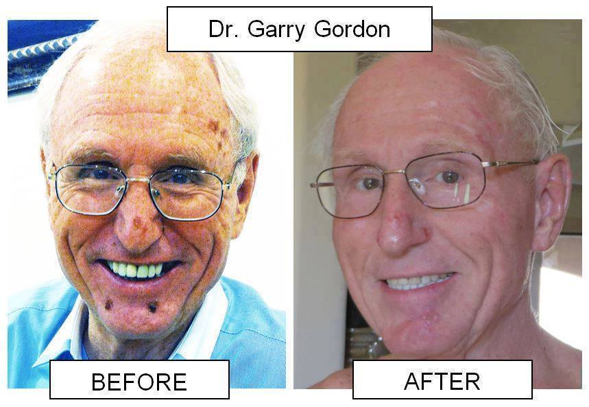 dr-gary-gordon-before-after.jpg