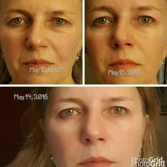 asea-renu-advanced-sophie-before-after3.jpg