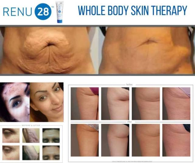 asea-renu28-whole-body-skin-therapy-woman-belly.jpg